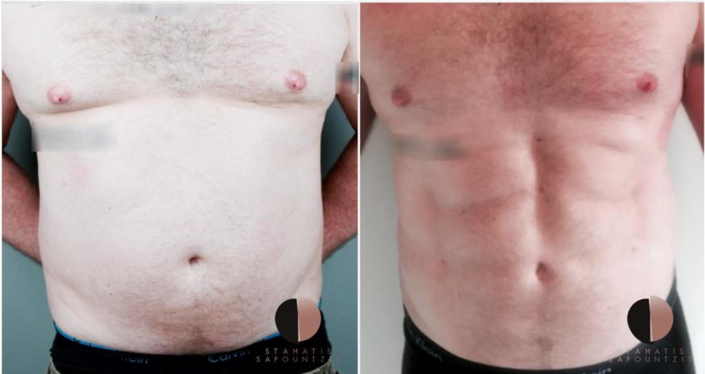 abdominal-etching
